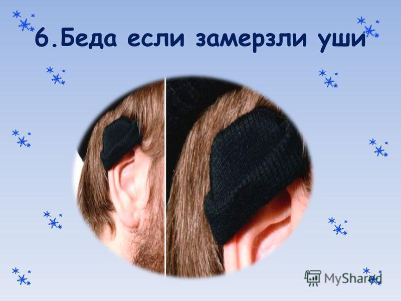 6. Беда если замерзли уши