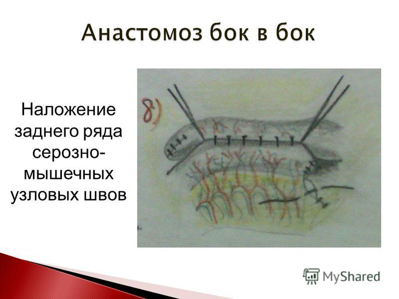 Наложение заднего ряда серозно- мышечных узловых швов