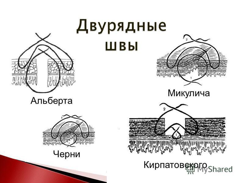 Альберта Кирпатовского Черни Микулича