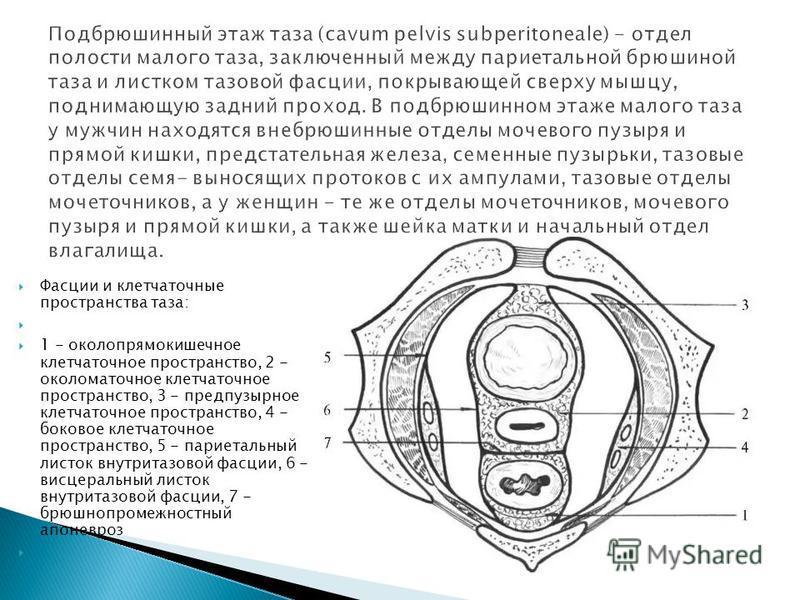 Фасции и клетчаточные пространства таза: 1 - околопрямокишечное клетчаточное пространство, 2 - околоматочное клетчаточное пространство, 3 - предпузырное клетчаточное пространство, 4 - боковое клетчаточное пространство, 5 - париетальный листок внутрит