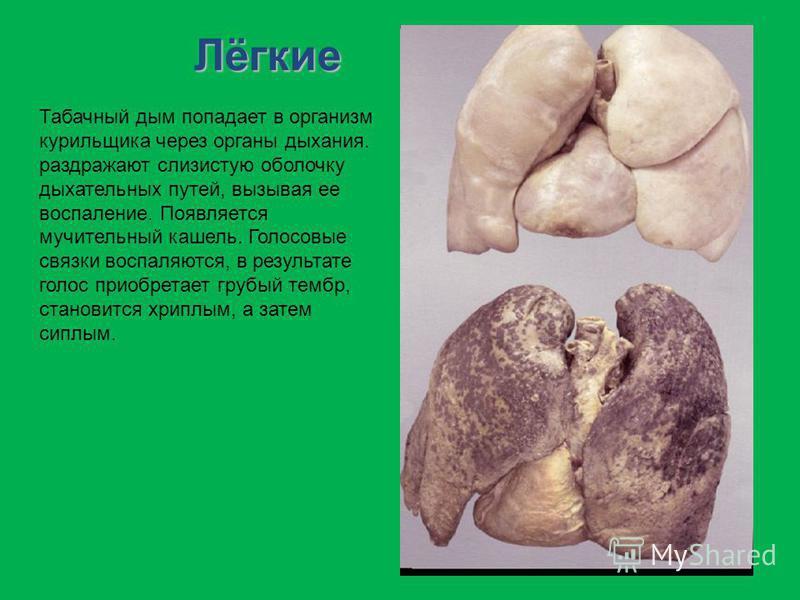 Лёгкие Табачный дым попадает в организм курильщика через органы дыхания. раздражают слизистую оболочку дыхательных путей, вызывая ее воспаление. Появляется мучительный кашель. Голосовые связки воспаляются, в результате голос приобретает грубый тембр,