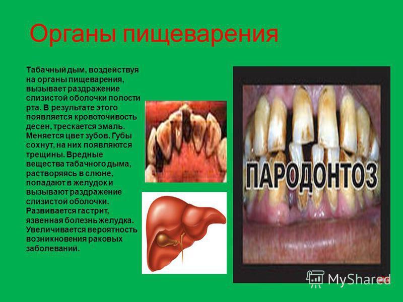 Табачный дым, воздействуя на органы пищеварения, вызывает раздражение слизистой оболочки полости рта. В результате этого появляется кровоточивость десен, трескается эмаль. Меняется цвет зубов. Губы сохнут, на них появляются трещины. Вредные вещества
