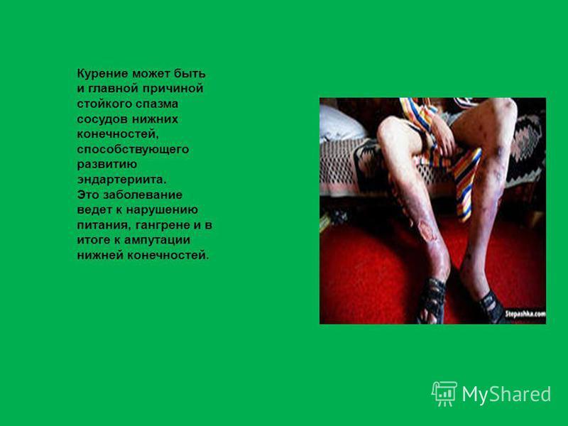 Курение может быть и главной причиной стойкого спазма сосудов нижних конечностей, способствующего развитию эндартериита. Это заболевание ведет к нарушению питания, гангрене и в итоге к ампутации нижней конечностей.
