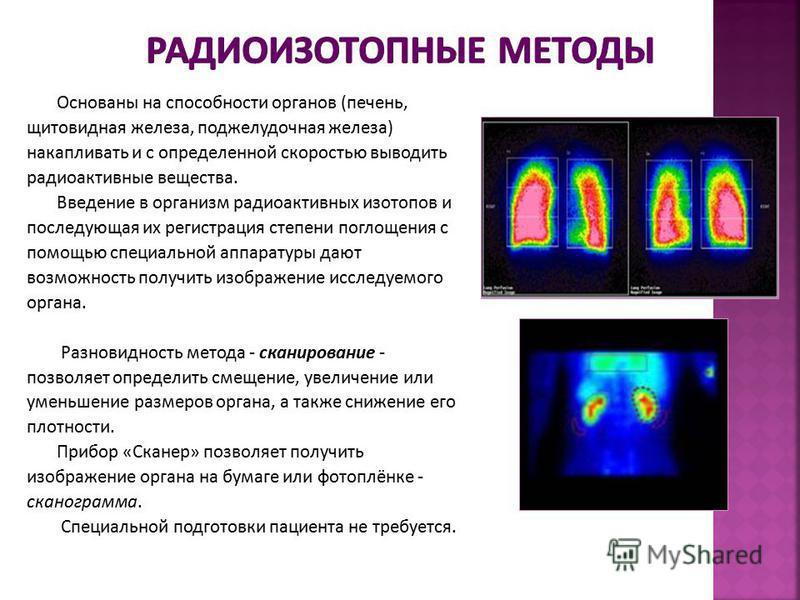 Основаны на способности органов (печень, щитовидная железа, поджелудочная железа) накапливать и с определенной скоростью выводить радиоактивные вещества. Введение в организм радиоактивных изотопов и последующая их регистрация степени поглощения с пом