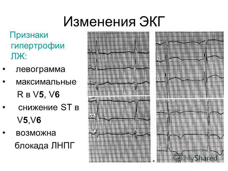 Изменения ЭКГ Признаки гипертрофии ЛЖ: левограмма максимальные R в V5, V6 снижение ST в V5,V6 возможна блокада ЛНПГ