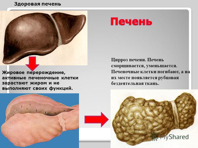 Здоровая печень Цирроз печени. Печень сморщивается, уменьшается. Печеночные клетки погибают, а на их месте появляется рубцовая бездеятельная ткань. Жировое перерождение, активные печеночные клетки зарастают жиром и не выполняют своих функций.