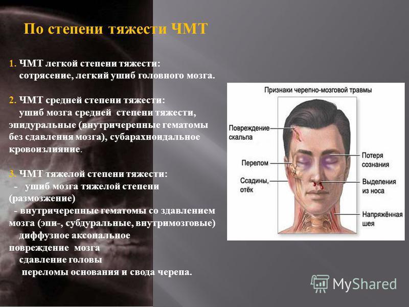 По степени тяжести ЧМТ 1. ЧМТ легкой степени тяжести : сотрясение, легкий ушиб головного мозга. 2. ЧМТ средней степени тяжести : ушиб мозга средней степени тяжести, эпидуральные ( внутричерепные гематомы без сдавления мозга ), субарахноидальное крово