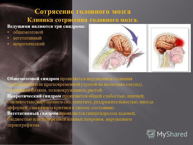Сотрясение головного мозга Клиника сотрясения головного мозга. Ведущими являются три синдрома : общемозговой вегетативный невротический Общемозговой синдром проявляется нарушением сознания ( оглушением или кратковременной утратой на несколько секунд