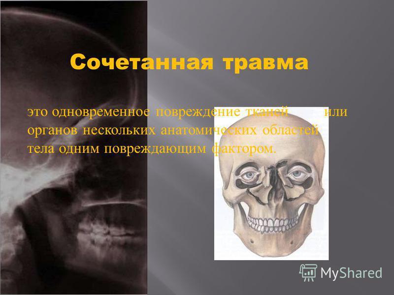 Сочетанная травма это одновременное повреждение тканей или органов нескольких анатомических областей тела одним повреждающим фактором.
