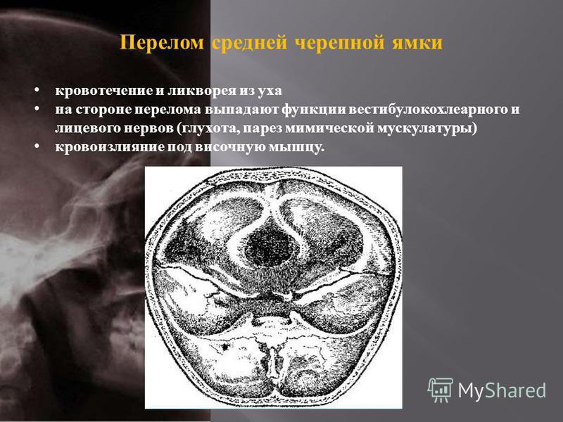 Перелом средней черепной ямки кровотечение и ликворея из уха на стороне перелома выпадают функции вестибулокохлеарного и лицевого нервов ( глухота, парез мимической мускулатуры ) кровоизлияние под височную мышцу.