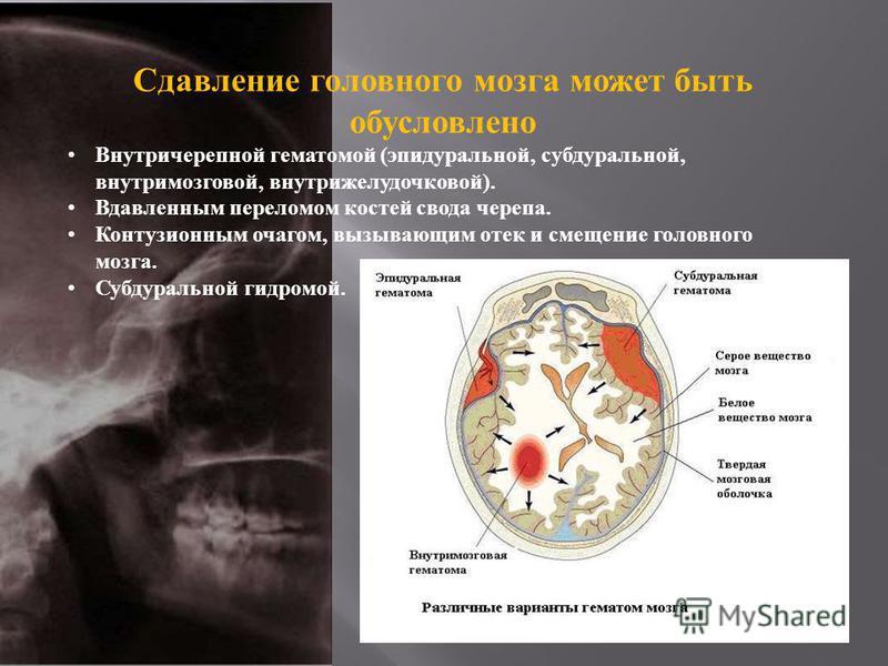 Сдавление головного мозга может быть обусловлено Внутричерепной гематомой ( эпидуральной, субдуральной, внутримозговой, внутрижелудочковой ). Вдавленным переломом костей свода черепа. Контузионным очагом, вызывающим отек и смещение головного мозга. С
