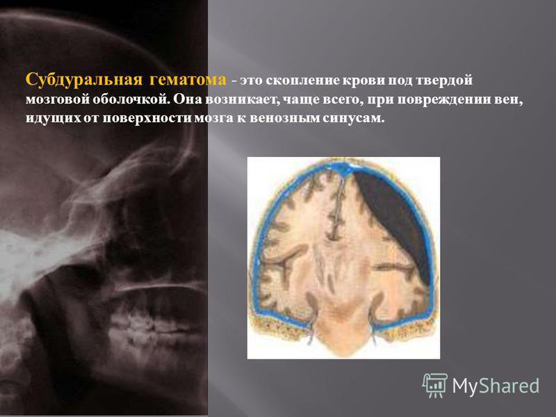 Субдуральная гематома - это скопление крови под твердой мозговой оболочкой. Она возникает, чаще всего, при повреждении вен, идущих от поверхности мозга к венозным синусам.