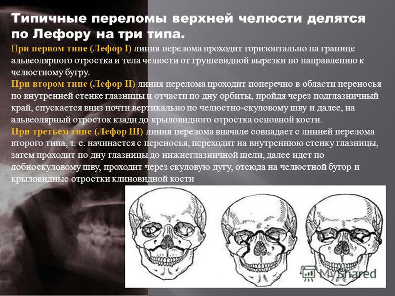 Типичные переломы верхней челюсти делятся по Лефору на три типа. При первом типе ( Лефор I) линия перелома проходит горизонтально на границе альвеолярного отростка и тела челюсти от грушевидной вырезки по направлению к челюстному бугру. При втором ти