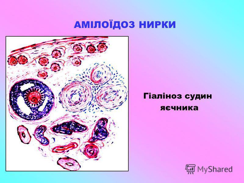 АМІЛОЇДОЗ НИРКИ Гіаліноз судин яєчника