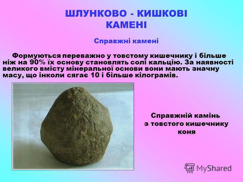 ШЛУНКОВО - КИШКОВІ КАМЕНІ Справжні камені Формуються переважно у товстому кишечнику і більше ніж на 90% їх основу становлять солі кальцію. За наявності великого вмісту мінеральної основи вони мають значну масу, що інколи сягає 10 і більше кілограмів.