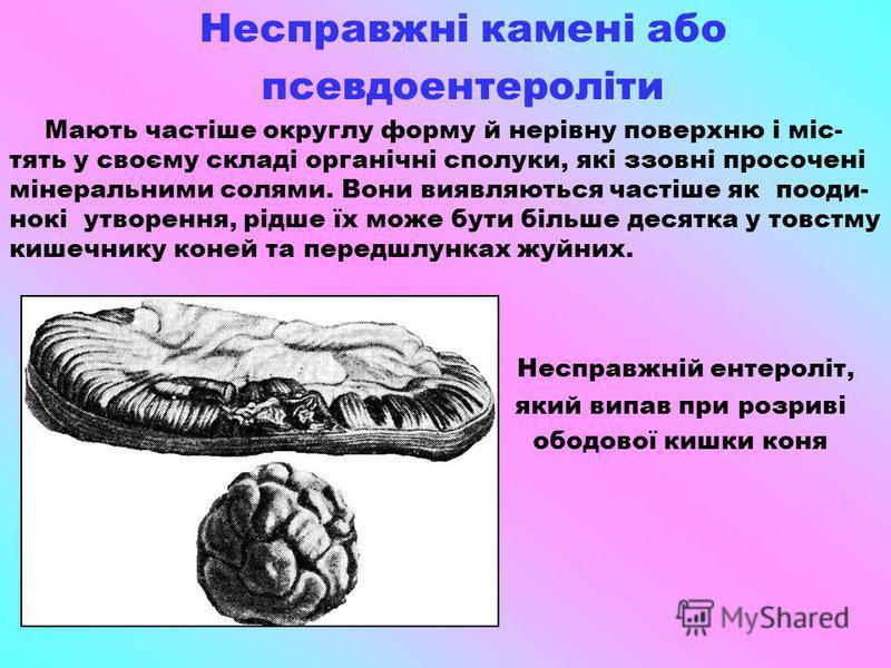 Несправжні камені або псевдоентероліти Мають частіше округлу форму й нерівну поверхню і міс- тять у своєму складі органічні сполуки, які ззовні просочені мінеральними солями. Вони виявляються частіше як пооди- нокі утворення, рідше їх може бути більш