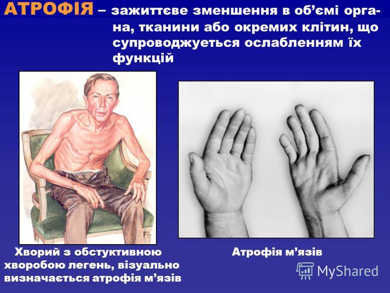 АТРОФІЯ – зажиттєве зменшення в обємі орга- на, тканини або окремих клітин, що супроводжуеться ослабленням їх функцій Хворий з обстуктивною Атрофія мязів хворобою легень, візуально визначається атрофія мязів