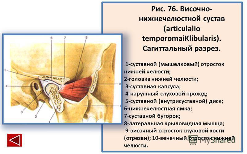 Рис. 76. Височно- нижнечелюстной сустав (articulalio temporomaiKlibularis). Сагиттальный разрез. 1-суставной (мыщелковый) отросток нижней челюсти; 2-головка нижней челюсти; 3-суставиая капсула; 4-наружный слуховой проход; 5-суставной (внутрисуставной