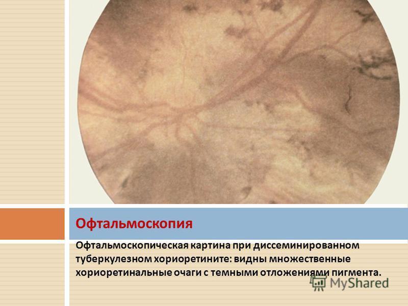 Офтальмоскопическая картина при диссеминированном туберкулезном хориоретините : видны множественные хориоретинальные очаги с темными отложениями пигмента. Офтальмоскопия
