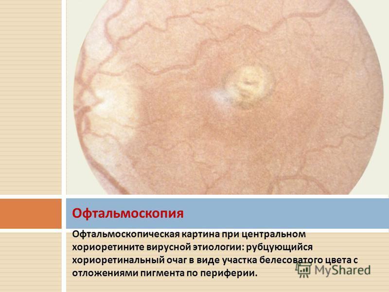 Офтальмоскопическая картина при центральном хориоретините вирусной этиологии : рубцующийся хориоретинальный очаг в виде участка белесоватого цвета с отложениями пигмента по периферии. Офтальмоскопия
