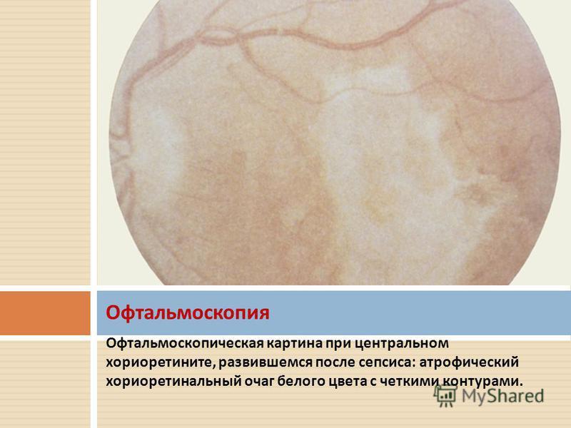 Офтальмоскопическая картина при центральном хориоретините, развившемся после сепсиса : атрофический хориоретинальный очаг белого цвета с четкими контурами. Офтальмоскопия