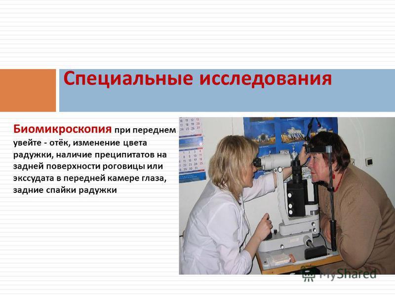 Биомикроскопия при переднем увейте - отёк, изменение цвета радужки, наличие преципитатов на задней поверхности роговицы или экссудата в передней камере глаза, задние спайки радужки Специальные исследования