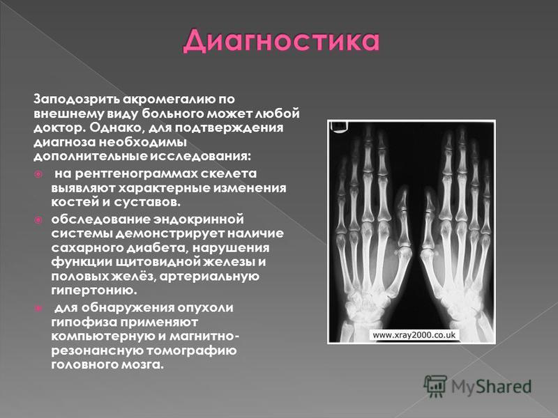 Заподозрить акромегалию по внешнему виду больного может любой доктор. Однако, для подтверждения диагноза необходимы дополнительные исследования: на рентгенограммах скелета выявляют характерные изменения костей и суставов. обследование эндокринной сис
