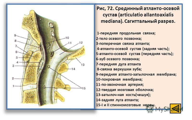 Рис, 72. Срединный атланто-осевой сустав (articulatio allantoaxialis mediana). Сагиттальный разрез. 1-передняя продольная связка; 2-тело осевого позвонка; 3-поперечная связка атланта; 4-атланто-осевой сустав (задняя часть); 5-атланто-осевой сустав (п