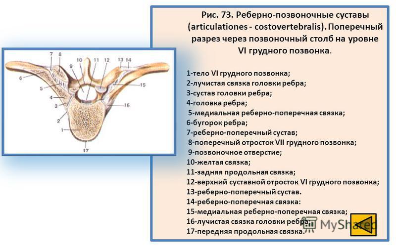 Рис. 73. Реберно-позвоночные суставы (articulationes - costovertebralis). Поперечный разрез через позвоночный столб на уровне VI грудного позвонка. 1-тело VI грудного позвонка; 2-лучистая связка головки ребра; 3-сустав головки ребра; 4-головка ребра;