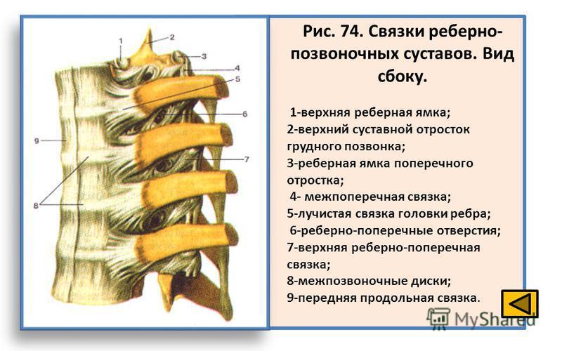 Рис. 74. Связки реберно- позвоночных суставов. Вид сбоку. 1-верхняя реберная ямка; 2-верхний суставной отросток грудного позвонка; 3-реберная ямка поперечного отростка; 4- меж поперечная связка; 5-лучистая связка головки ребра; 6-реберно-поперечные о
