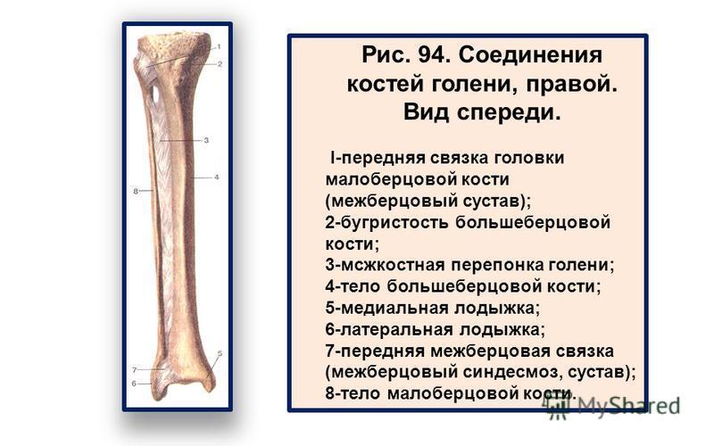 Рис. 94. Соединения костей голени, правой. Вид спереди. I-передняя связка головки малоберцовой кости (межберцовый сустав); 2-бугристость большеберцовой кости; 3-мсжкостная перепонка голени; 4-тело большеберцовой кости; 5-медиальная лодыжка; 6-латерал