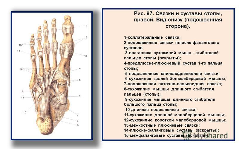 Рис. 97. Связки и суставы стопы, правой. Вид снизу (подошвенная сторона). 1-коллатеральные связки; 2-подошвенные связки плюсне-фаланговых суставов; 3-влагалиша сухожилий мышц - сгибателей пальцев стопы (вскрыты); 4-предплюсне-плюсневый сустав 1-го па