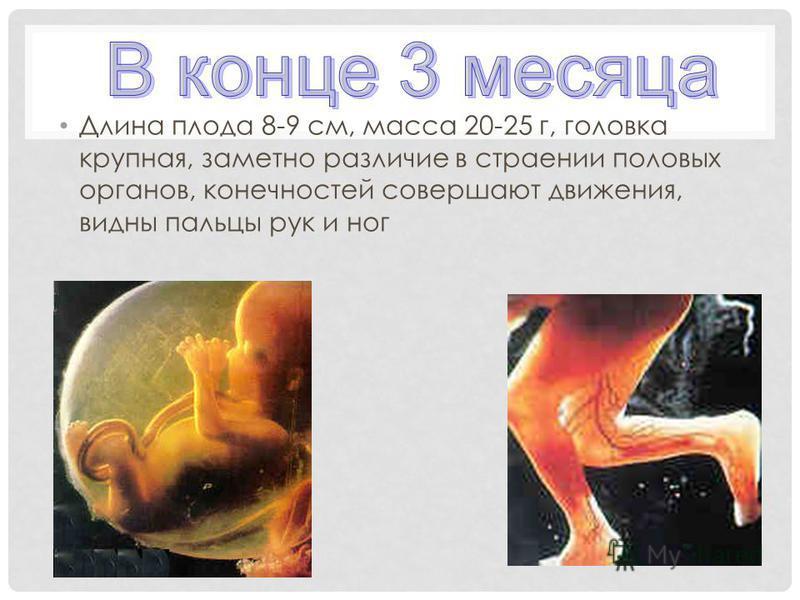 Длина плода 8-9 см, масса 20-25 г, головка крупная, заметно различие в строении половых органов, конечностей совершают движения, видны пальцы рук и ног