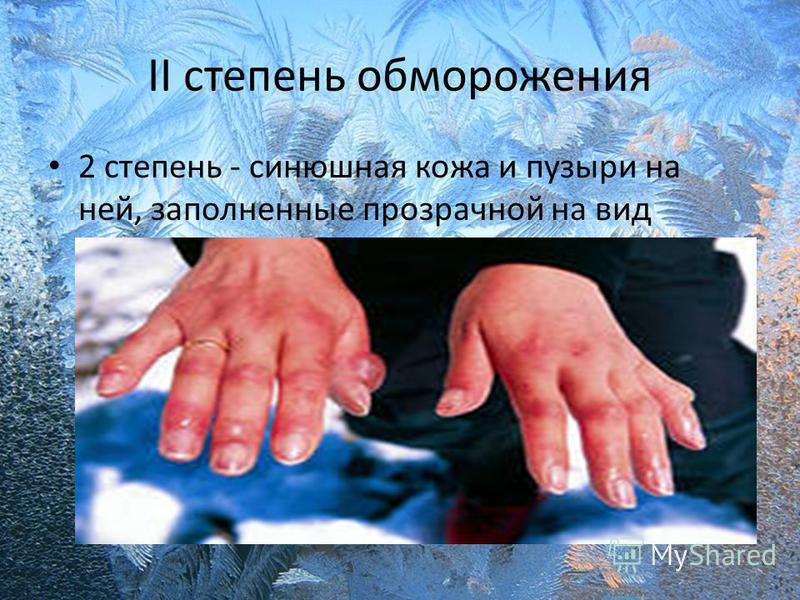 II степень обморожения 2 степень - синюшная кожа и пузыри на ней, заполненные прозрачной на вид жидкостью;
