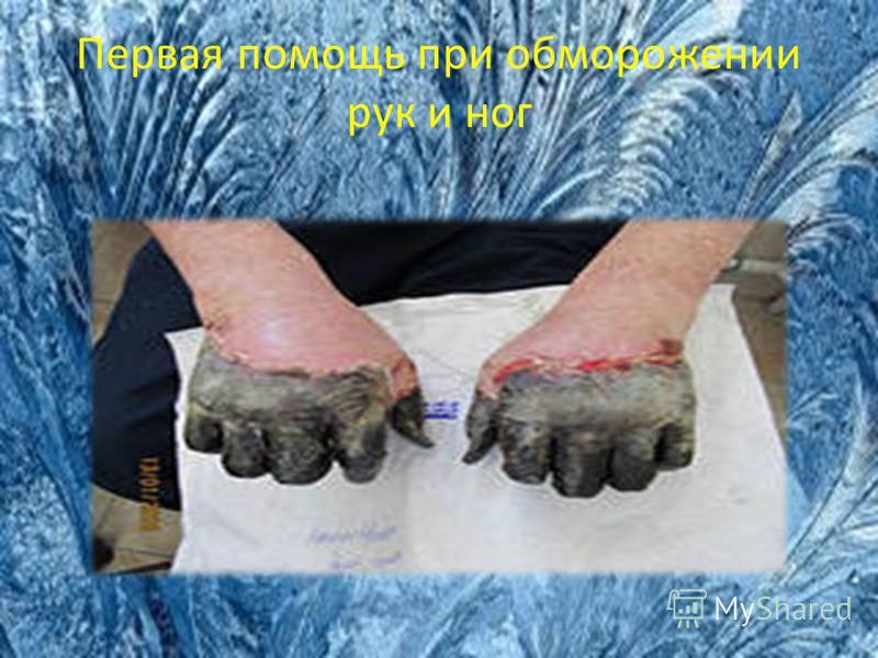 Первая помощь при обморожении рук и ног