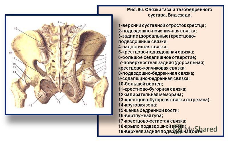 Рис. 86. Связки таза и тазобедренного сустава. Вид сзади. 1-верхний суставной отросток крестца; 2-подвздошно-пояснич-ная связка; 3-задиие (дорсальные) крестцово- подвздошные связки; 4-надостистая связка; 5-крестцово-подвздошная связка; 6-большое седа