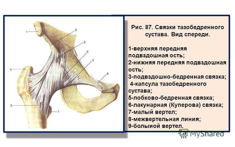 Рис. 87. Связки тазобедренного сустава. Вид спереди. 1-верхняя передняя подвздошная ость; 2-нижняя передняя подвздошная ость; 3-подвздошно-бедренная связка; 4-капсула тазобедренного сустава; 5-лобково-бедренная связка; 6-лакунарная (Куперова) связка;