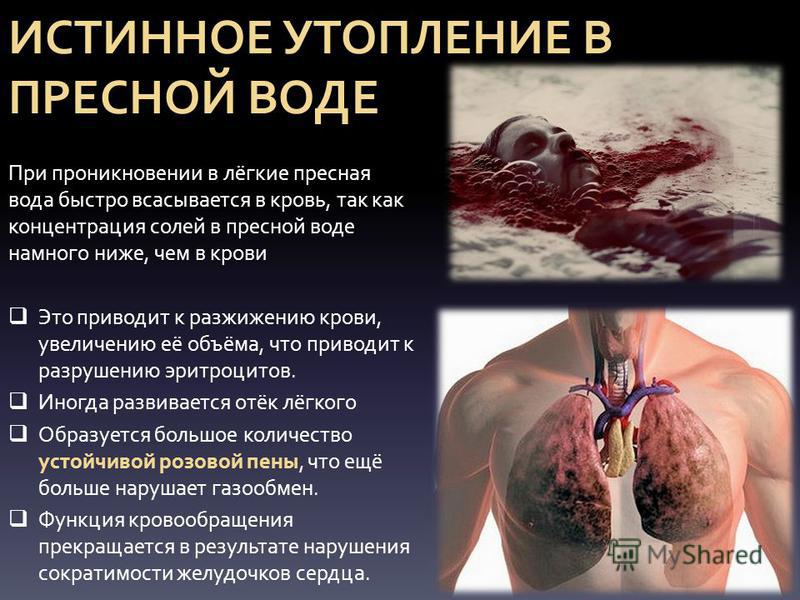 ИСТИННОЕ УТОПЛЕНИЕ В ПРЕСНОЙ ВОДЕ При проникновении в лёгкие пресная вода быстро всасывается в кровь, так как концентрация солей в пресной воде намного ниже, чем в крови Это приводит к разжижению крови, увеличению её объёма, что приводит к разрушению