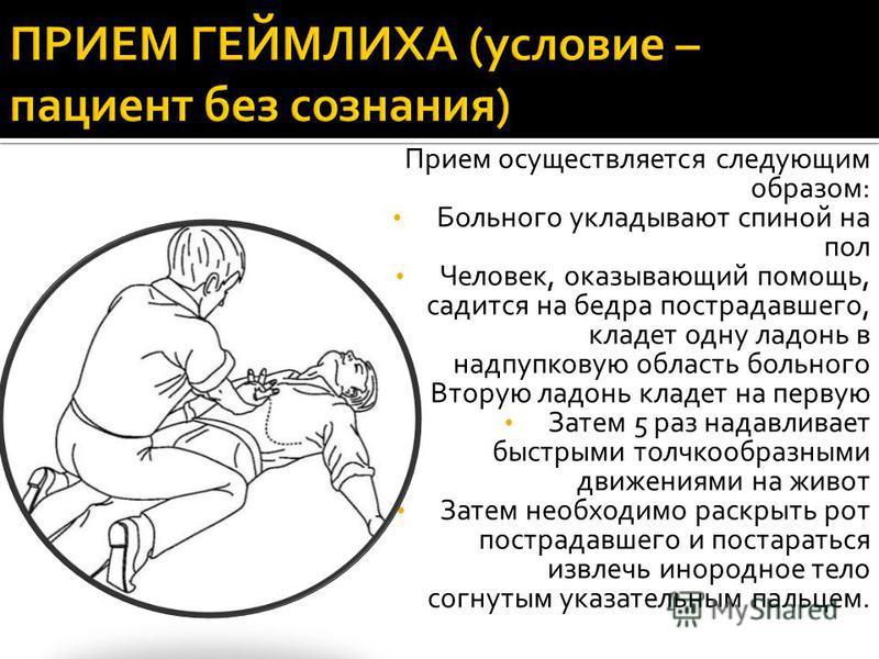 Прием осуществляется следующим образом: Больного укладывают спиной на пол Человек, оказывающий помощь, садится на бедра пострадавшего, кладет одну ладонь в надпупковую область больного Вторую ладонь кладет на первую Затем 5 раз надавливает быстрыми т
