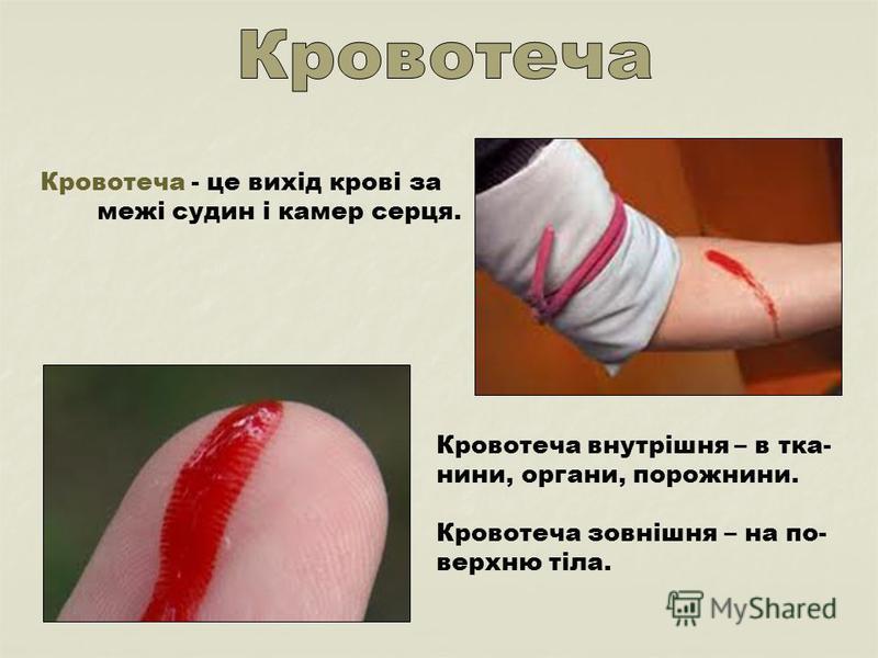 Кровотеча - це вихід крові за межі судин і камер серця. Кровотеча внутрішня – в тка- нини, органи, порожнини. Кровотеча зовнішня – на по- верхню тіла.