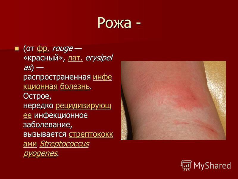 Рожа - (от фр. rouge «красный», лат. erysipel as) распространенная инфокционная болезнь. Острое, нередко рецидивирующее инфокционное заболевание, вызывается стрептококками Streptococcus pyogenes. (от фр. rouge «красный», лат. erysipel as) распростран