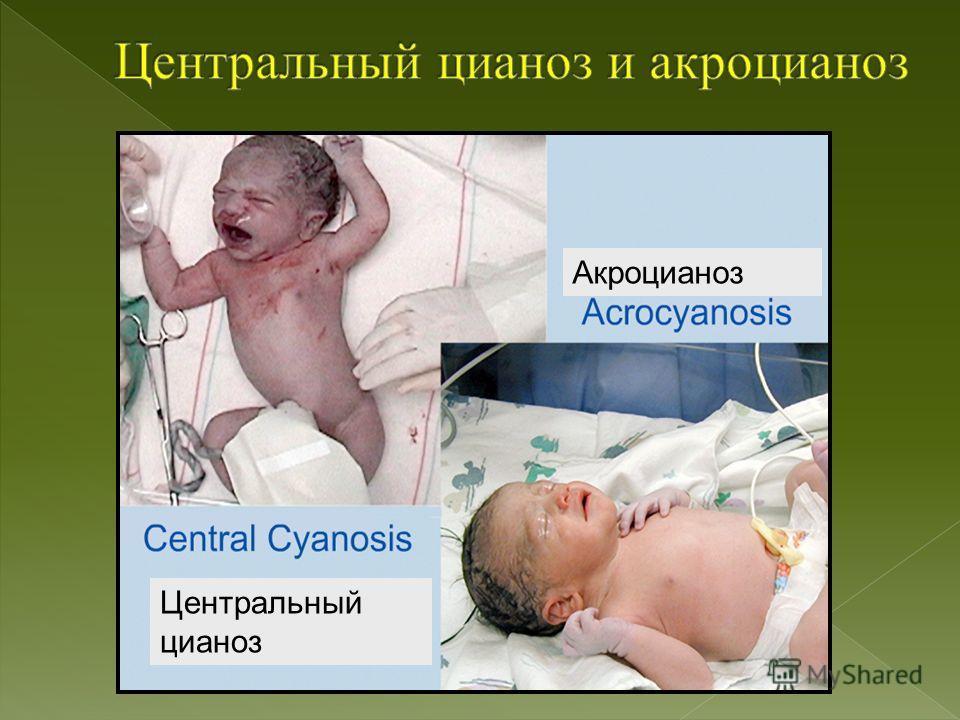 Акроцианоз Центральный цианоз