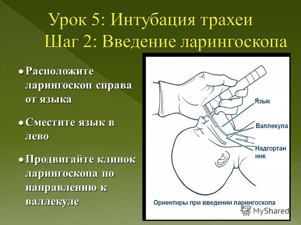 l Расположите ларингоскоп справа от языка l Сместите язык в лево l Продвигайте клинок ларингоскопа по направлению к валлекуле