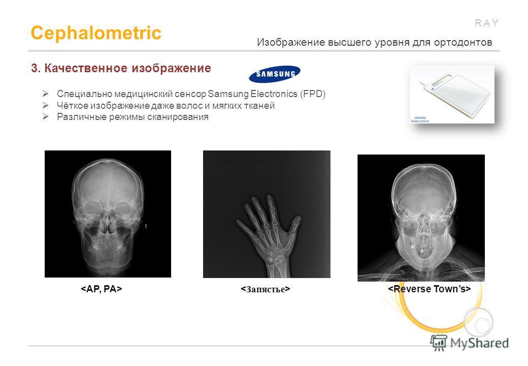 RAY Cephalometric 3. Качественное изображение Специально медицинский сенсор Samsung Electronics (FPD) Чёткое изображение даже волос и мягких тканей Различные режимы сканирования Изображение высшего уровня для ортодонтов