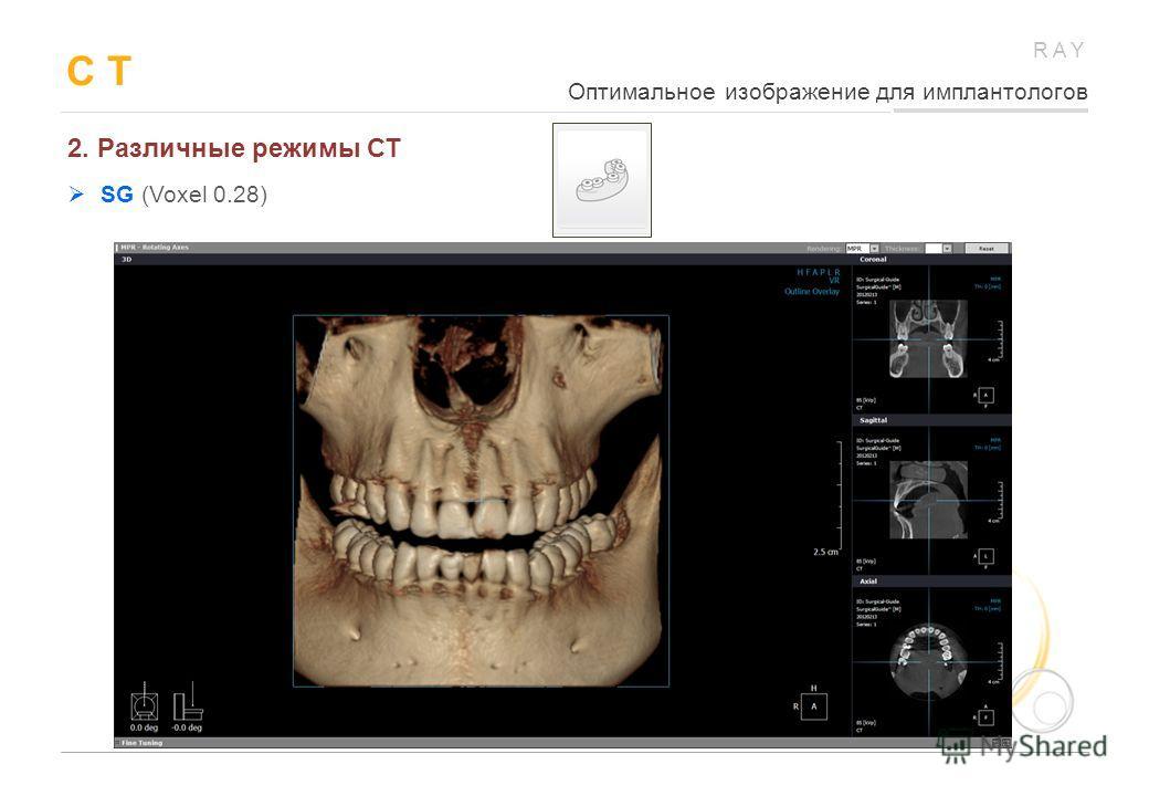 RAY C T 2. Различные режимы СТ SG (Voxel 0.28) Оптимальное изображение для имплантологов