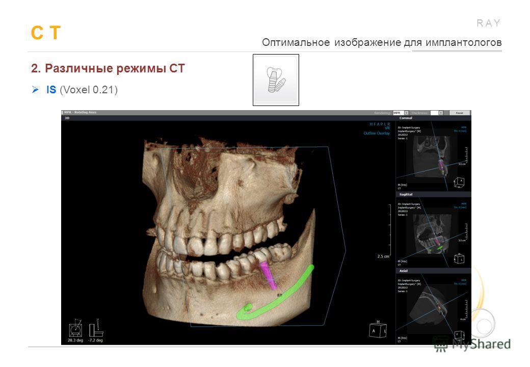 RAY C T 2. Различные режимы СТ IS (Voxel 0.21) Оптимальное изображение для имплантологов