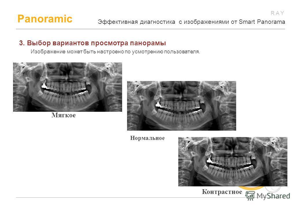 RAY Panoramic 3. Выбор вариантов просмотра панорамы Изображение может быть настроено по усмотрению пользователя. Мягкое Нормальное Контрастное Эффективная диагностика с изображениями от Smart Panorama