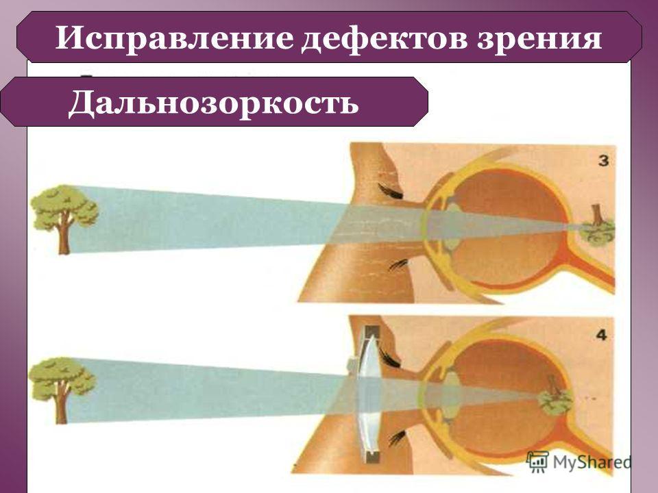 Исправление дефектов зрения Дальнозоркость