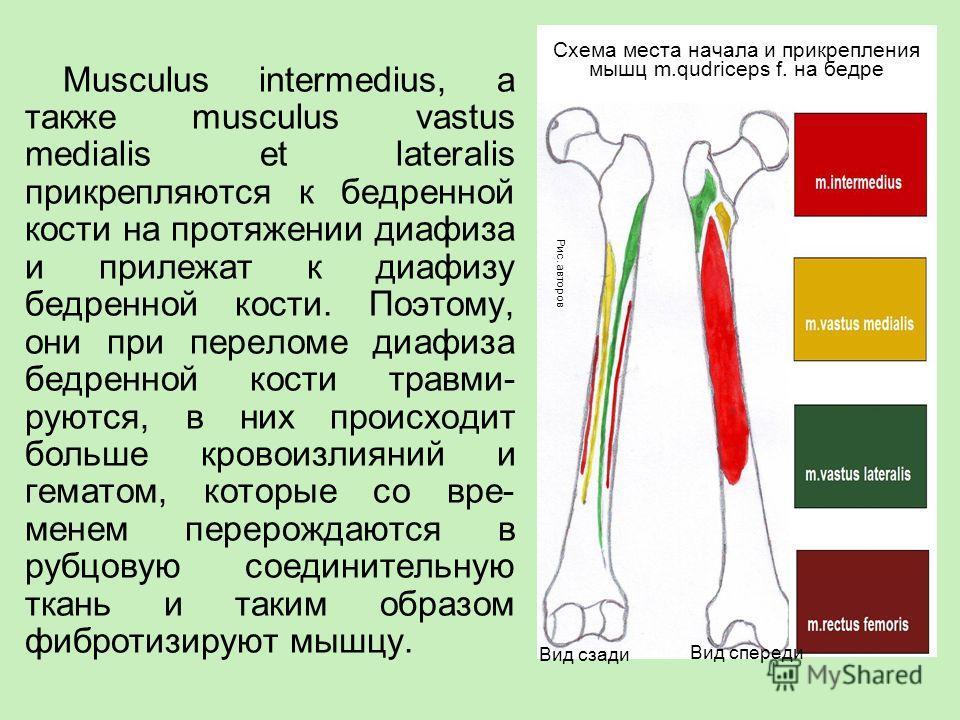 Musculus intermedius, а также musculus vastus medialis et lateralis прикрепляются к бедренной кости на протяжении диафиза и прилежат к диафизу бедренной кости. Поэтому, они при переломе диафиза бедренной кости травми- руются, в них происходит больше