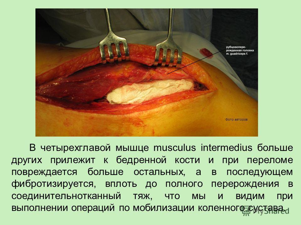 В четырехглавой мышце musculus intermedius больше других прилежит к бедренной кости и при переломе повреждается больше остальных, а в последующем фибротизируется, вплоть до полного перерождения в соединительнотканный тяж, что мы и видим при выполнени